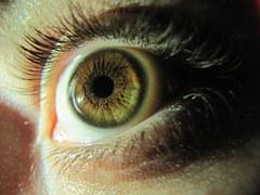 iris iridologie naturopathie